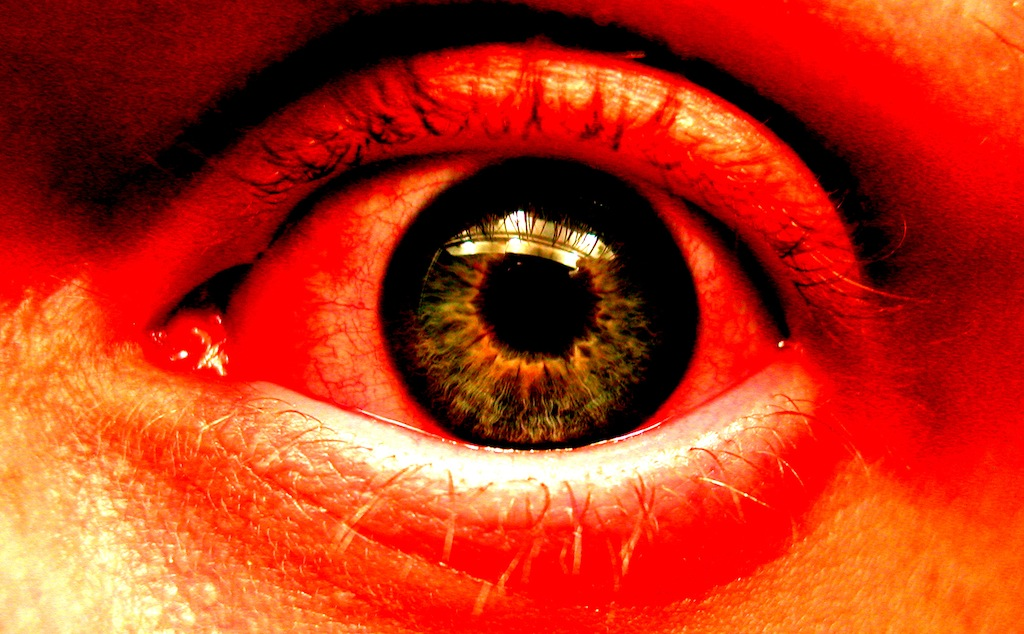 Red Eyes and Weed - Why, Why Me and What to Do About It