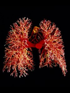 Cannabis and Lung Cancer | source: http://alchymista.tumblr.com/post/17683408460/resin-cast-of-the-lungs-displaying-the-branching