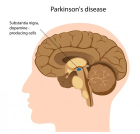 Study: Inhaled Cannabis Mitigates Parkinson's Disease Symptoms