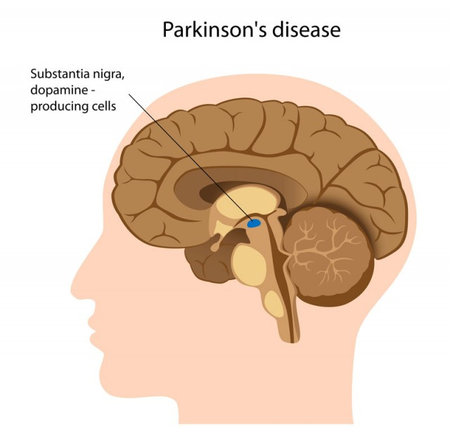 a study of parkinsons disease Do you have parkinson's disease and are currently able to walk without using  any assistive device and are ages 50-74 if your answer to these.